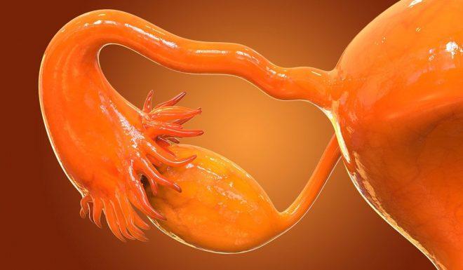 colitis crónica podría ser cáncer