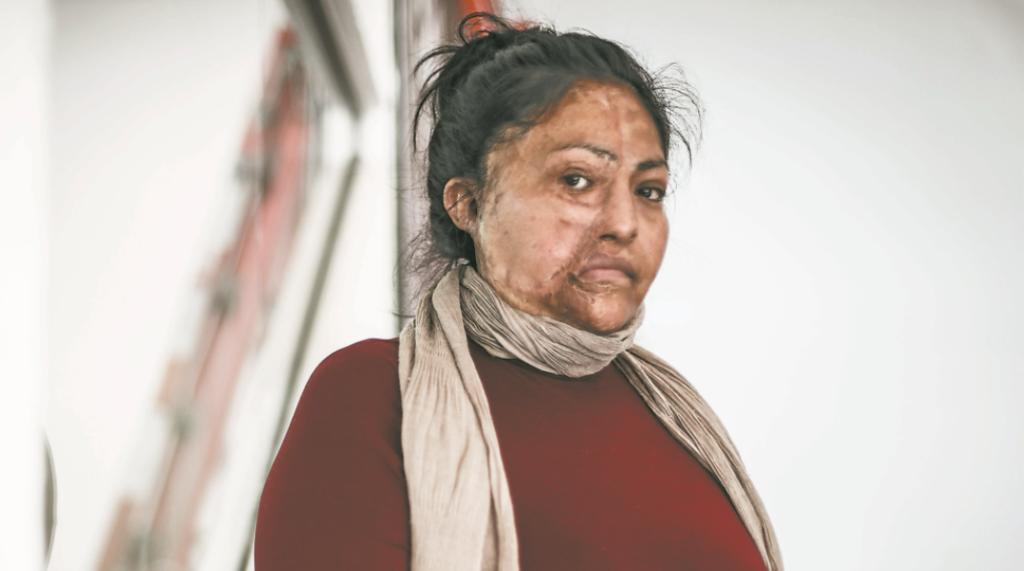 Tras 7 años, detienen al sujeto que desfiguró con ácido el rostro de María del Carmen
