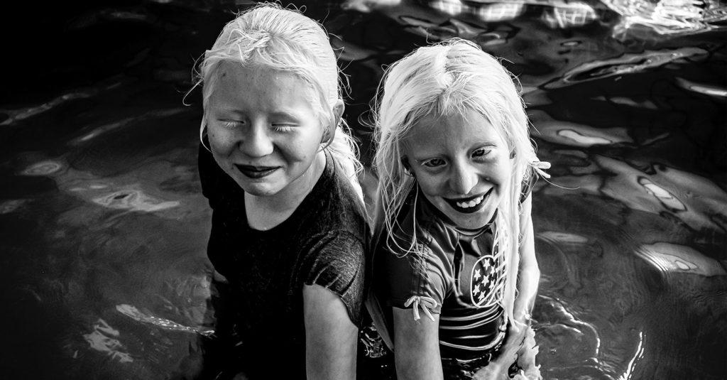 El albinismo se caracteriza por la ausencia de melanina en la piel, el cabello y los ojos. Pilar Campos realizó una crónica fotográfica